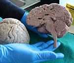 brain-thumb